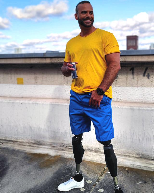 Model, Hamburg, Bergedorf, Leben ohne Beine, Cihad Yayman, Mobbing, Handicap, Behinderung, Interview